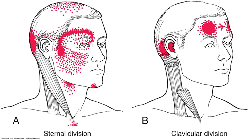 Trigger Points of the Sternocleidomastoid (SCM)