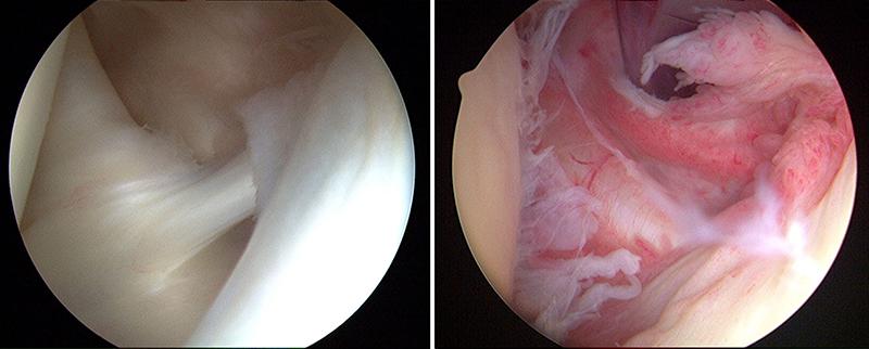 Frozen Shoulder (Photo credit: https://orthoinfo.aaos.org/en/diseases--conditions/frozen-shoulder/)