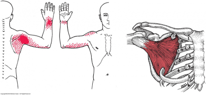 Subscapularis Muscle and its Pain Referral Patterns