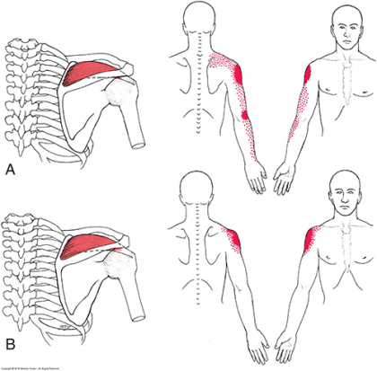 Supraspinatus Muscle and its Pain Referral Patterns